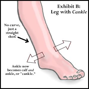 cankle-illustration